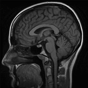 MRI Course